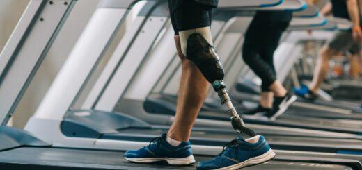 Інформація для осіб, які потребують забезпечення протезно-ортопедичними виробами